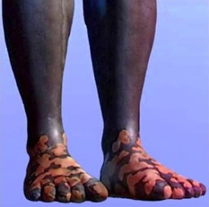 The Scriptures identify the transition from Legs to Feet.